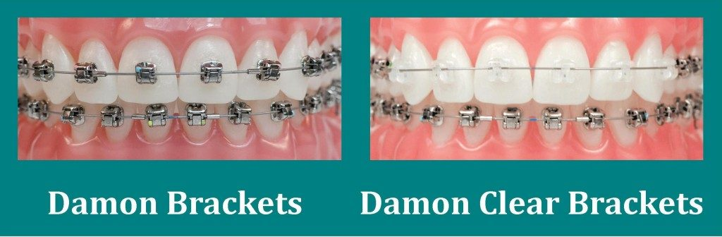 damon-braces-royal-palm-beach-1024x336
